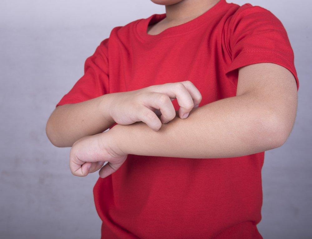 Почему развивается контактный дерматит?