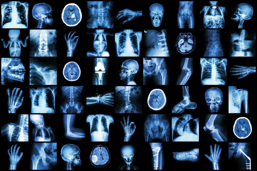 Рентгенография: особенности исследования, информативность, противопоказания