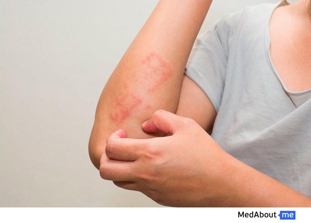 Осложнения при отсутствии лечения чесотки
