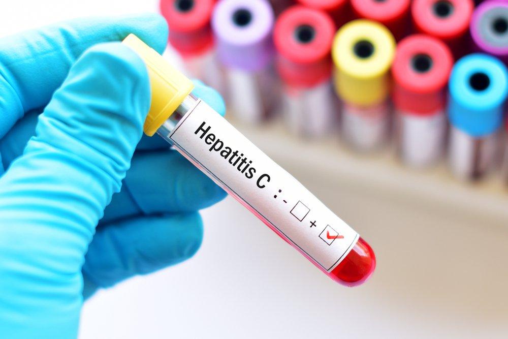 От вирусных болезней печени страдают даже здоровые