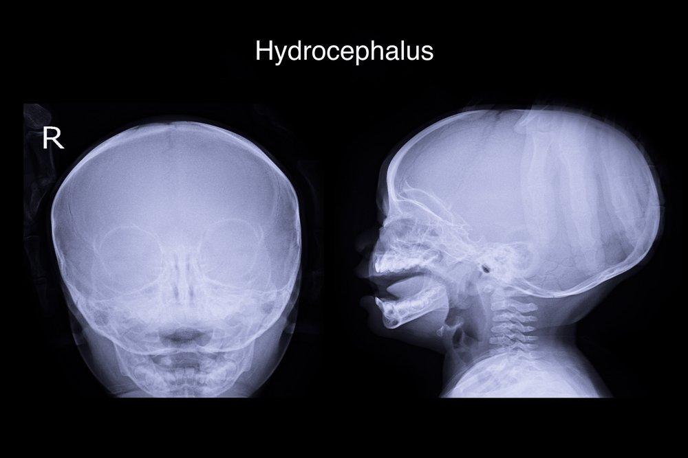Диагностика гидроцефалии у детей