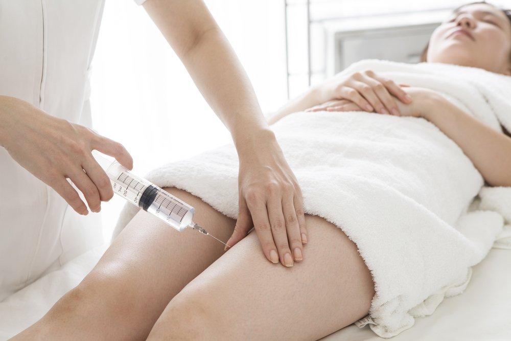 Плюсы склеротерапии: отсутствие стресса и следов на коже