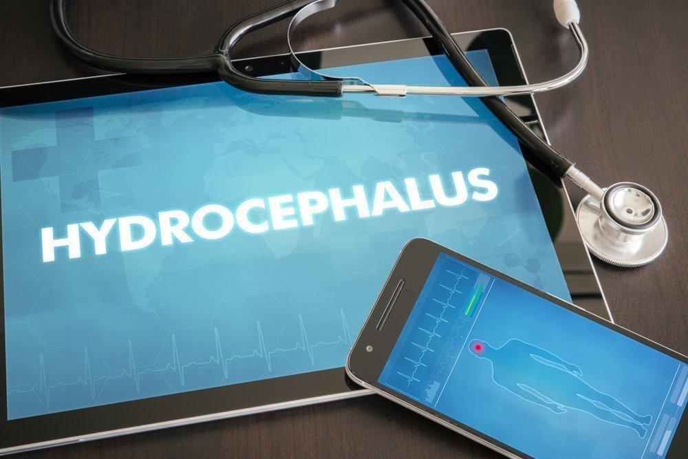 Степени выраженности гидроцефалии