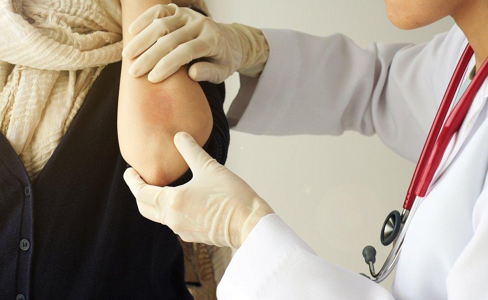 Клиническая картина дерматита