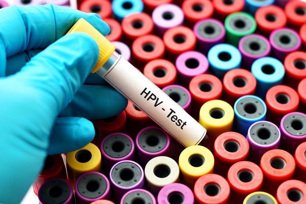 Выявление инфицирования ВПЧ