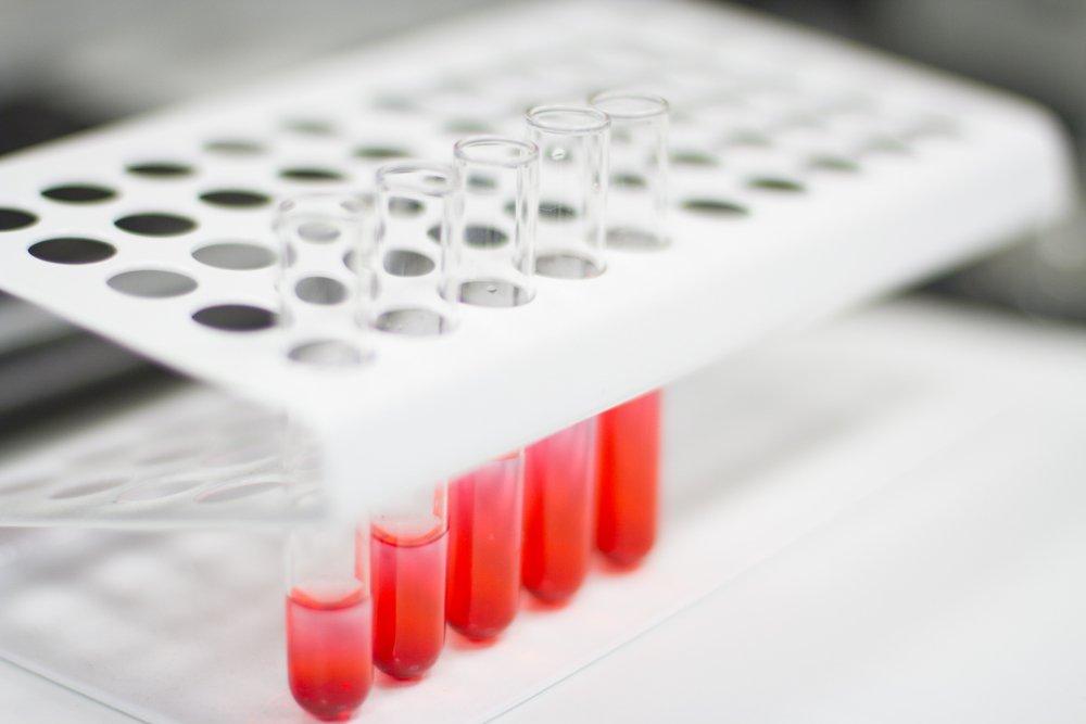 Анализ крови на электролиты