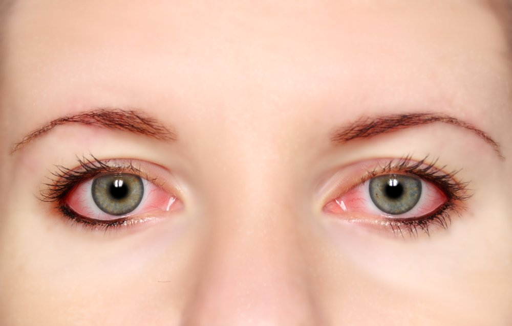 Кровоизлияние в глаз