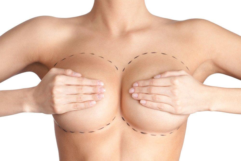 6. Вынужденная операция по увеличению груди