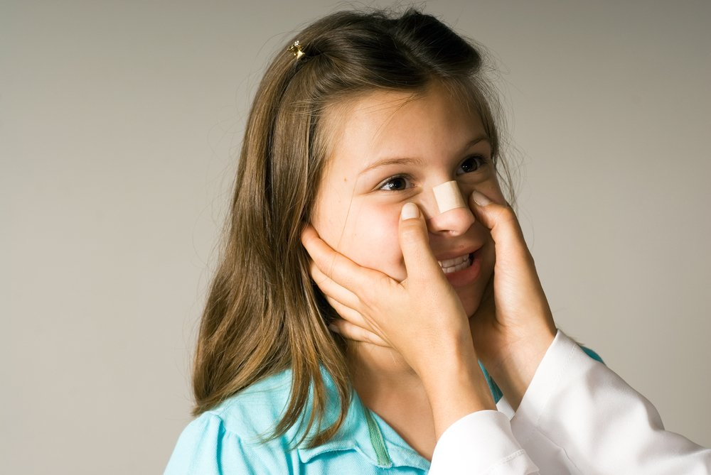 Чего опасен сломанный нос для здоровья?