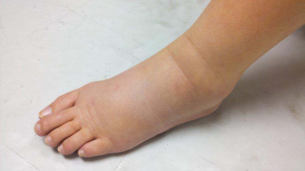 Когда отечность ног говорит о болезнях: сопутствующие симптомы