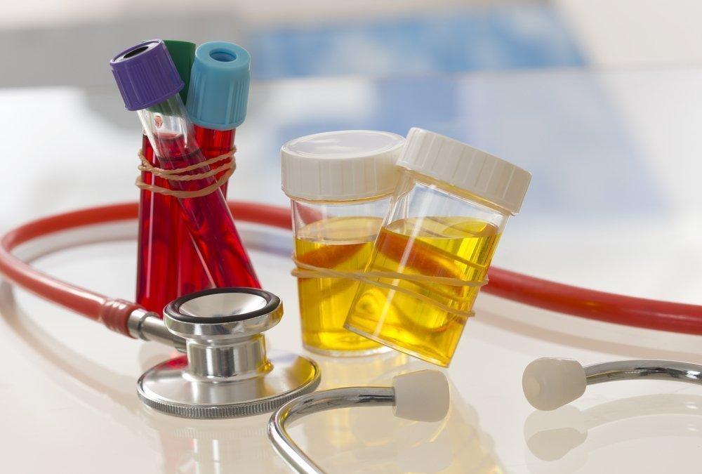 Особенности развития острого простатита