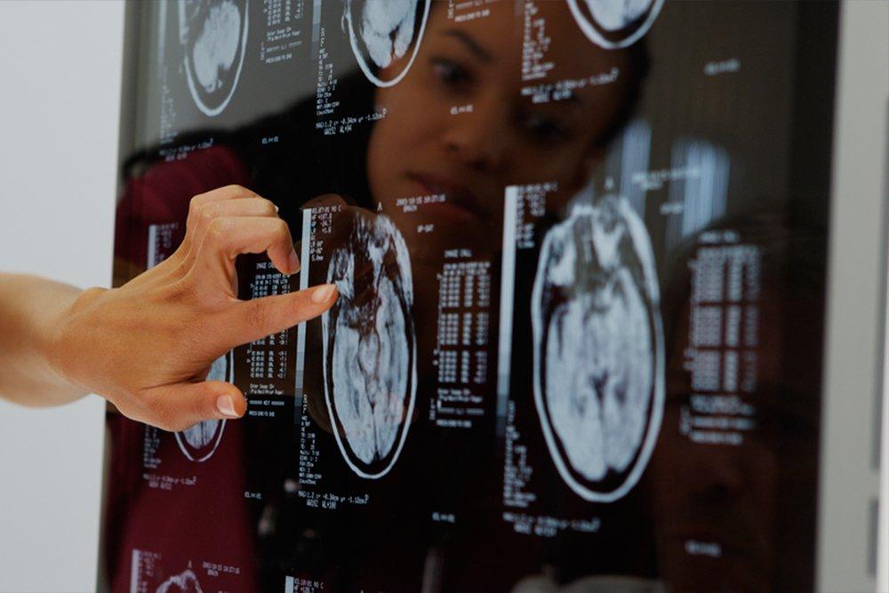 Как проводят диагностику и лечение гигантизма