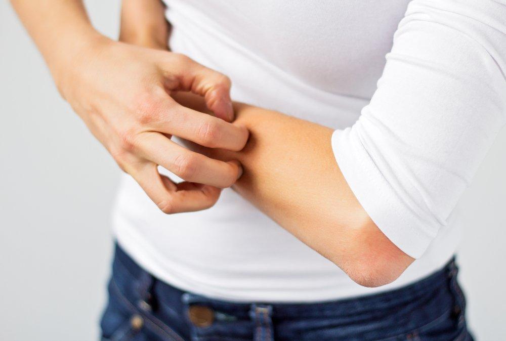 Дерматит: формы, лечение, причины, симптомы, диагностика