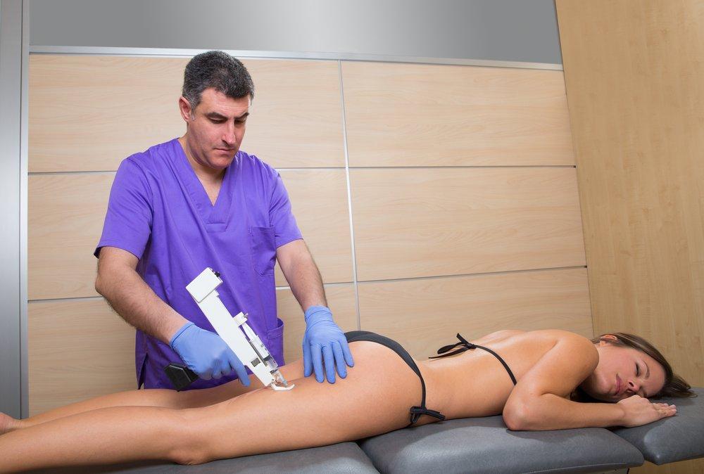 Особенности выбора метода лечения целлюлита в менопаузе