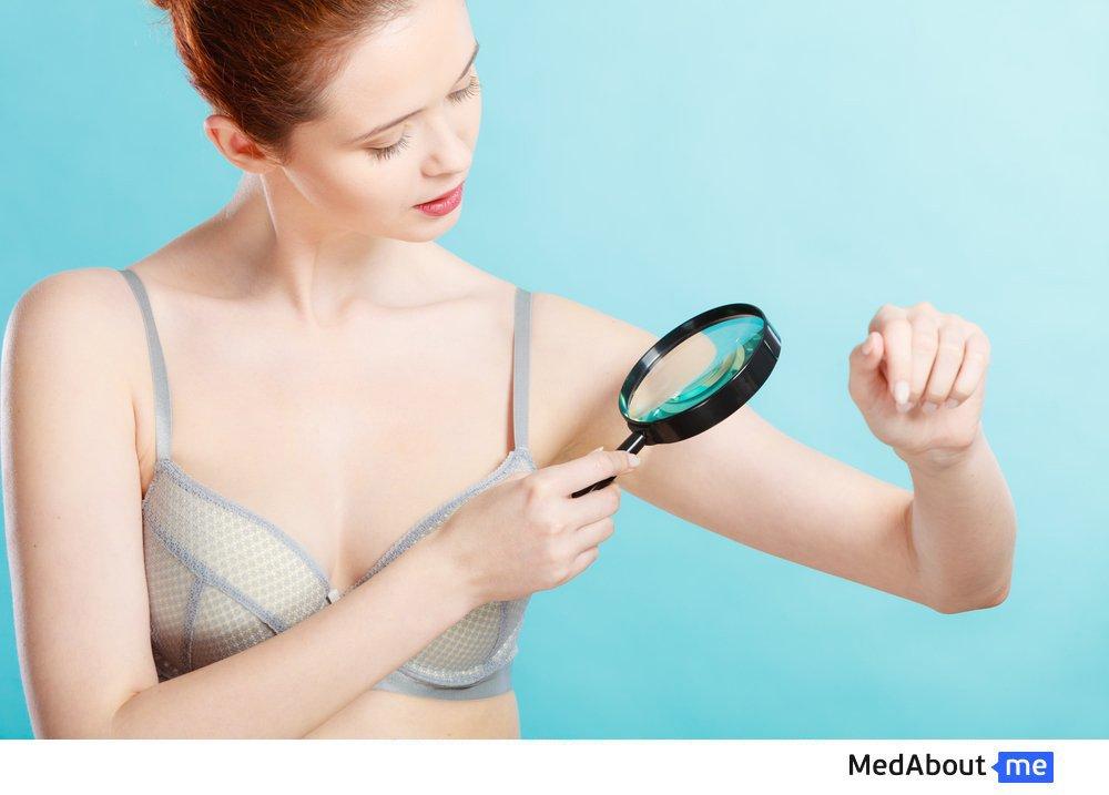 Меланома: симптомы заболевания