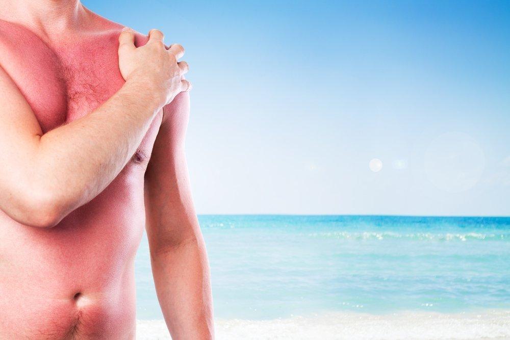 Солнечный ожог и состояние кожи
