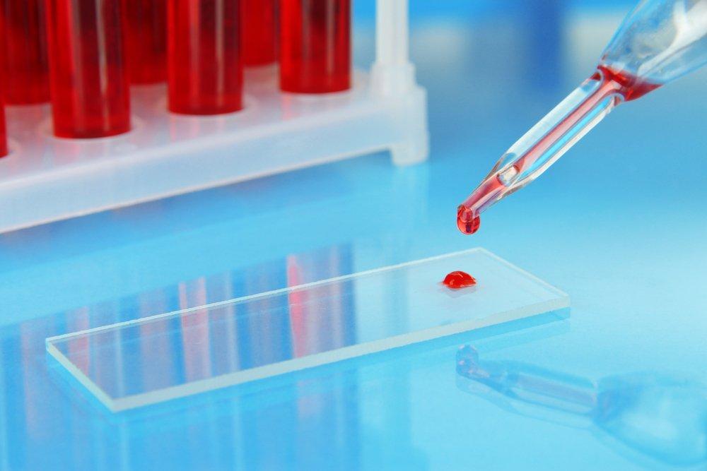Дефицит витамина В12: недозрелые эритроциты, лейкоциты, тромбоциты
