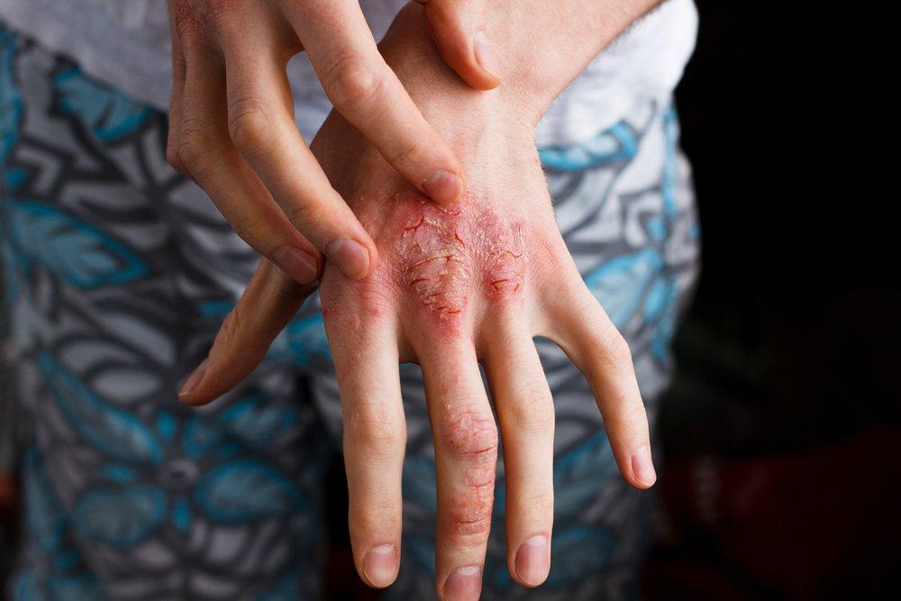 Принципы лечения атопического дерматита