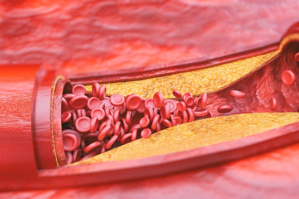 Возможные причины атеросклероза коронарных артерий