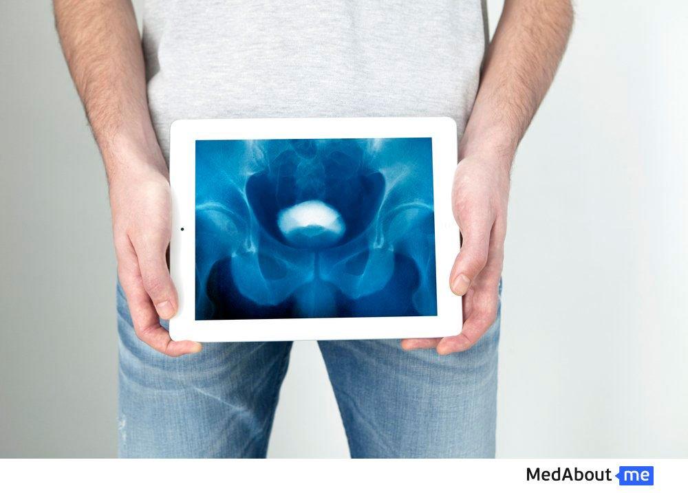 Ретроградная уретрография