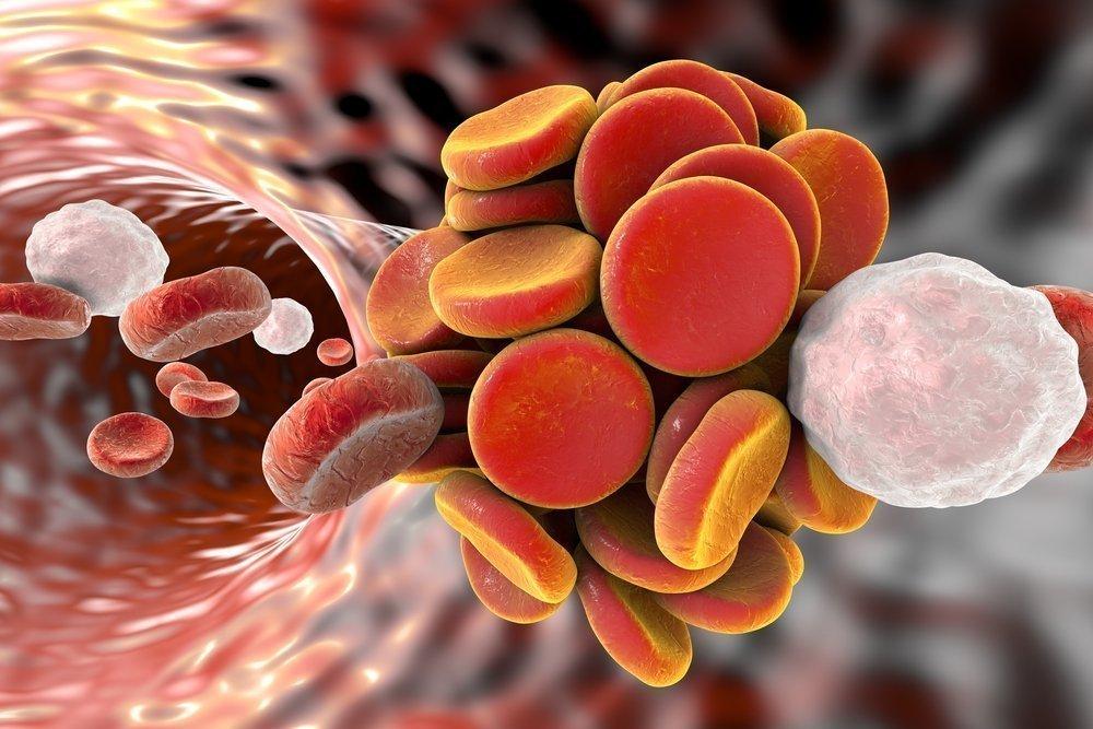 Роль лейкоцитов в развитии болезни сердца