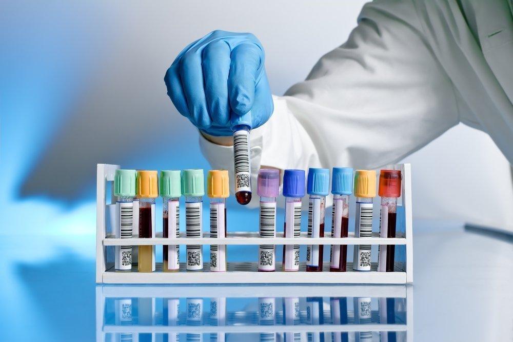 Как происходит диагностика? Определение билирубина