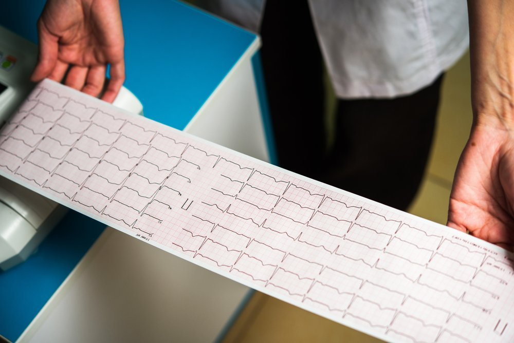 Симптомы инфаркта с атипичной локализацией боли