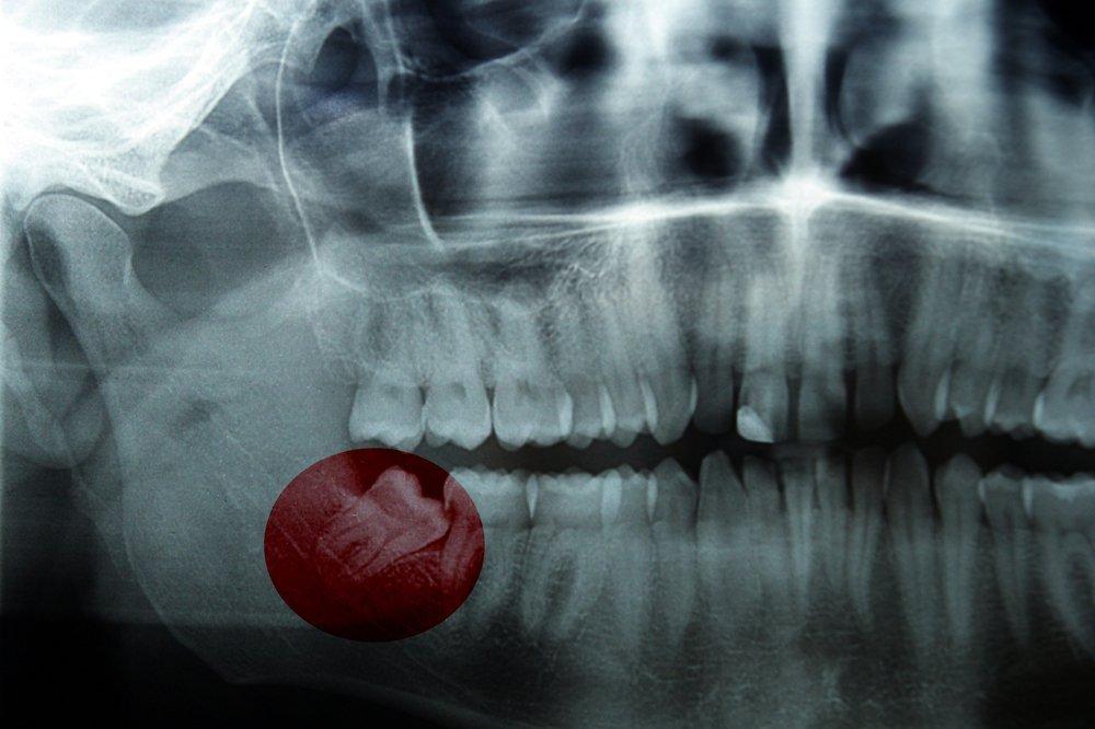 Сложное и атипичное удаление зубов мудрости