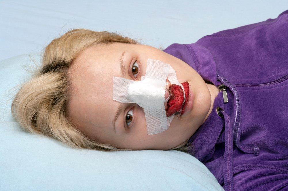 Что нужно сделать при ушибах носа?