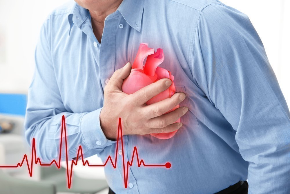 Причины инфаркта: что провоцирует?