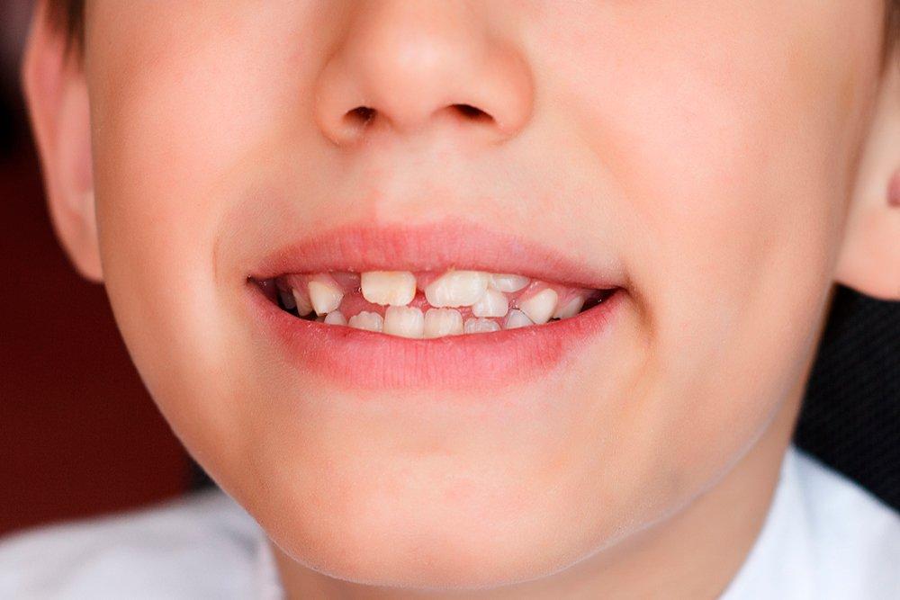 Прорезывание сверхкомплектных зубов