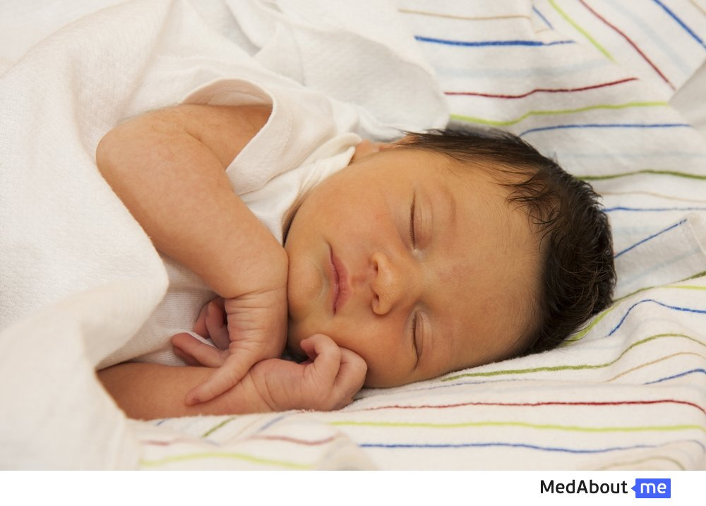 Причины желтухи у новорожденных