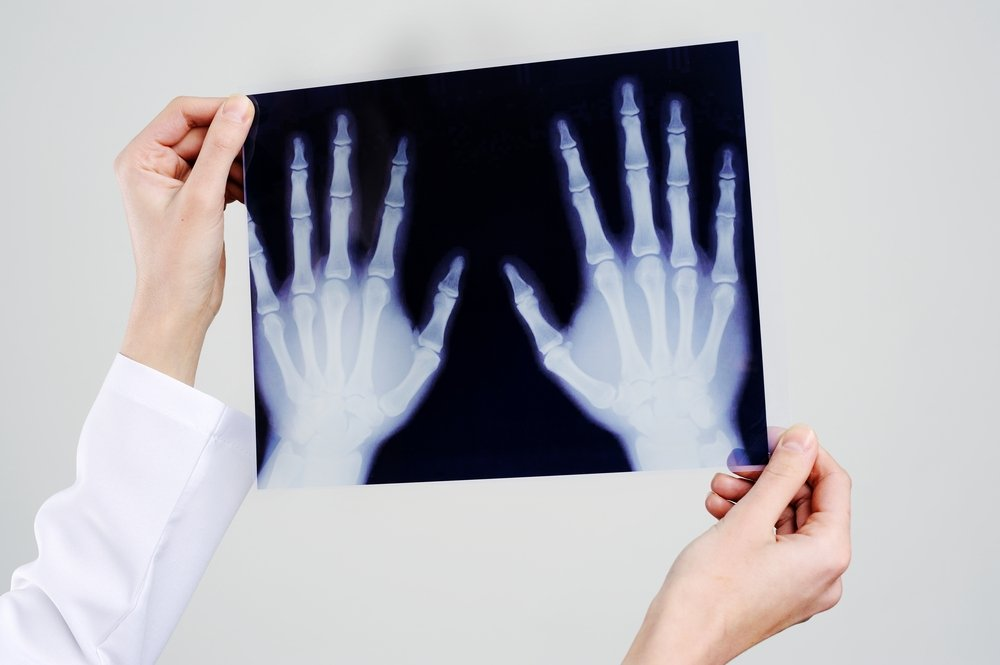 Диагностика: рентген, отек, анализы
