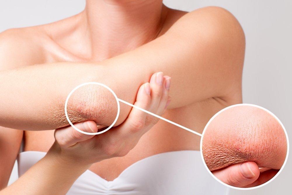 Ксероз кожи: причины возникновения и симптомы