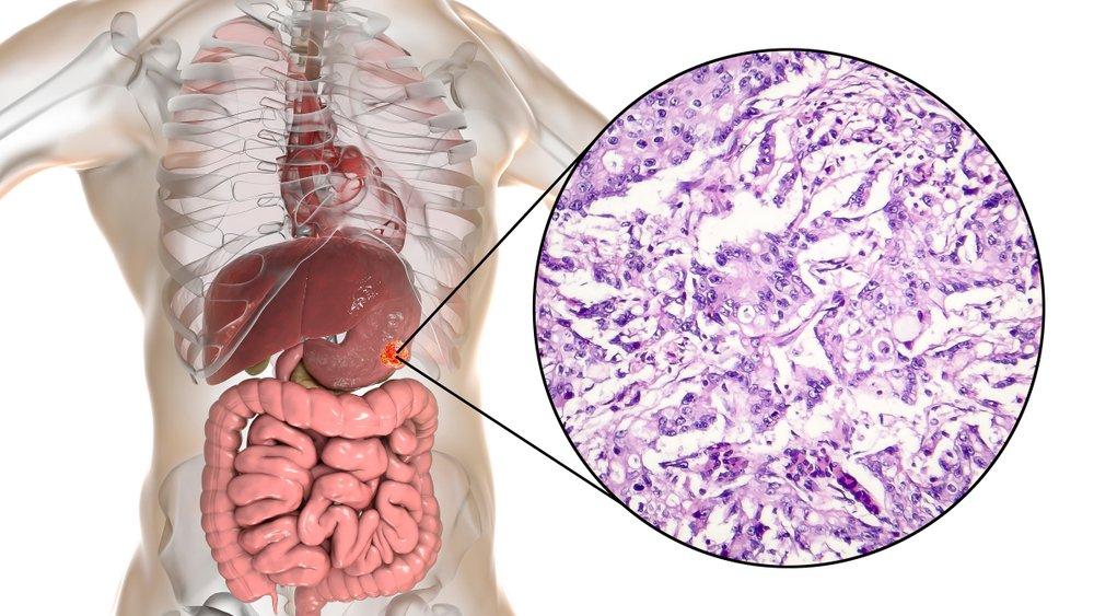 Симптомы при низкодифференцированной аденокарциноме желудка