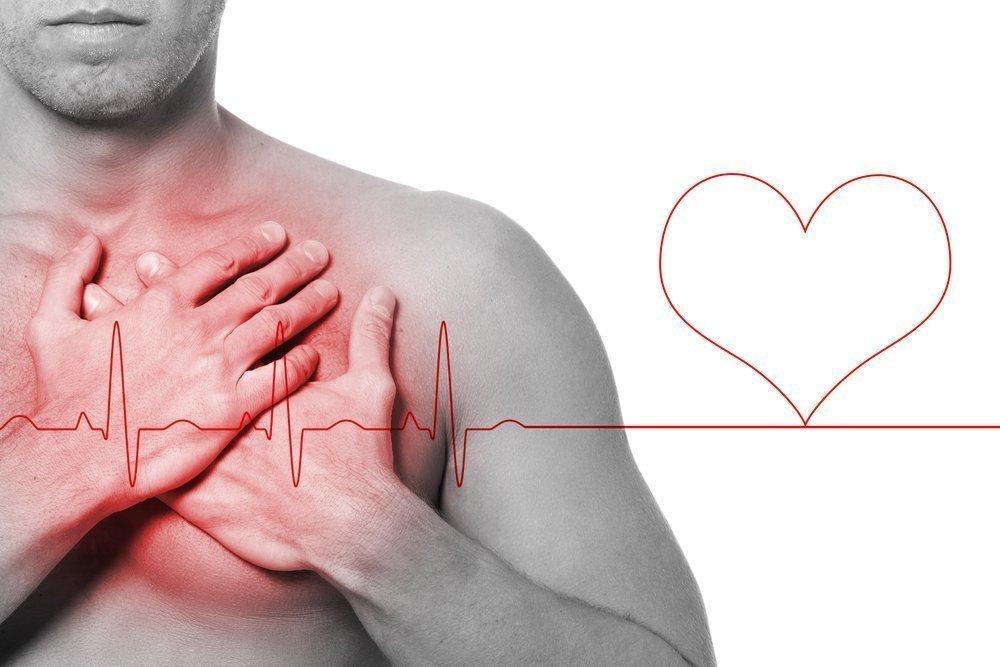 Симптомы острого инфаркта миокарда