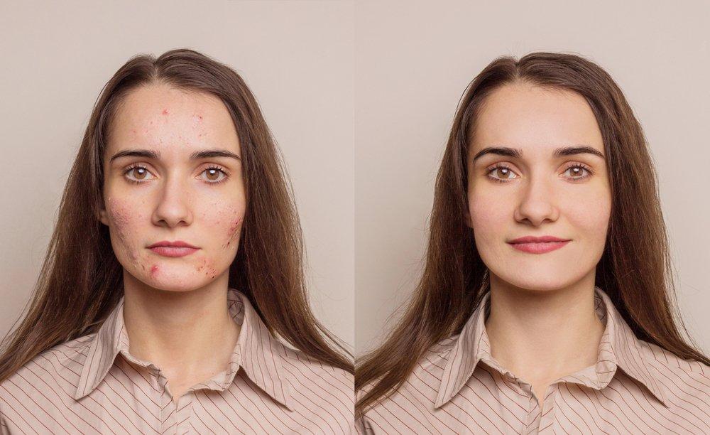 Проблемы с кожей лица и тела: виды шрамов