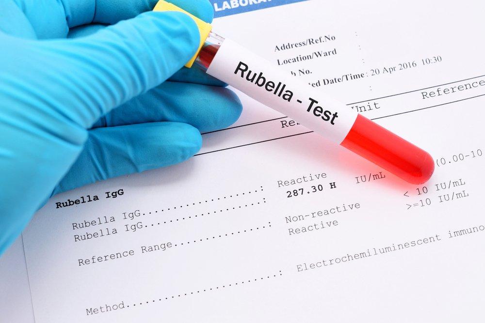 Перед введением вакцины против краснухи важно знать