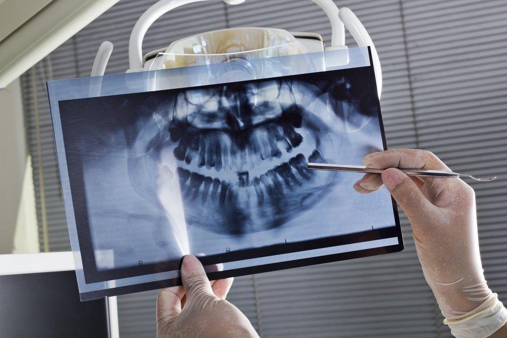 Имплантация зубов — подготовительный период