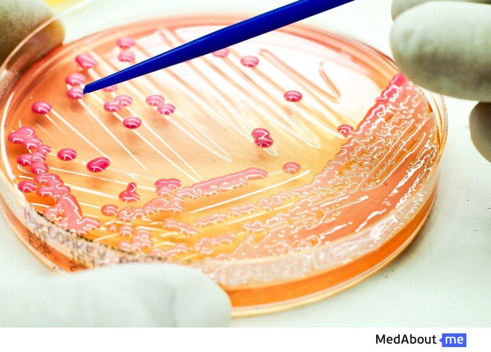 Анализ на сальмонеллез и другие лабораторные исследования