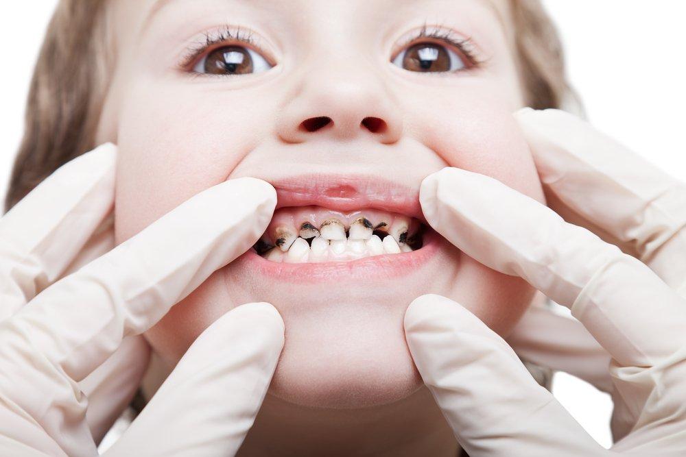 Воспаление, кариес — ищем источник в полости рта