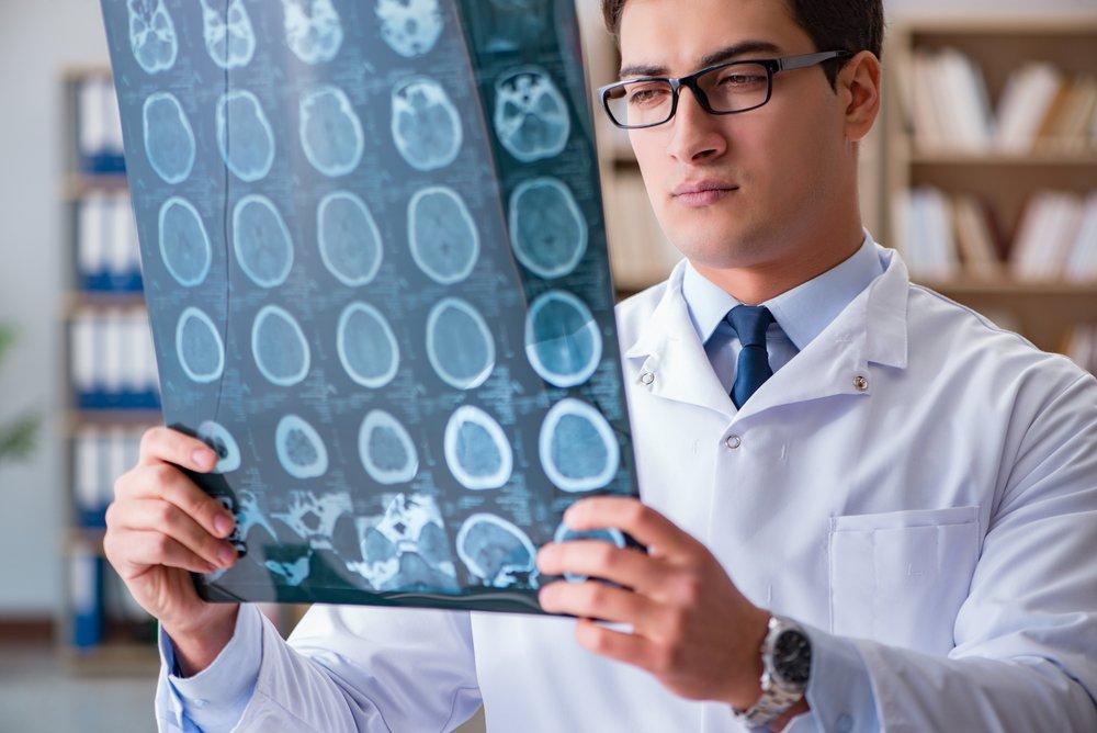 Нервная система: энцефалопатия, инсульт и другие заболевания