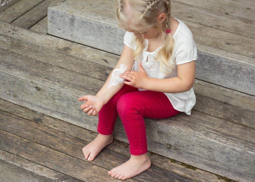 Профилактика детского фотодерматоза