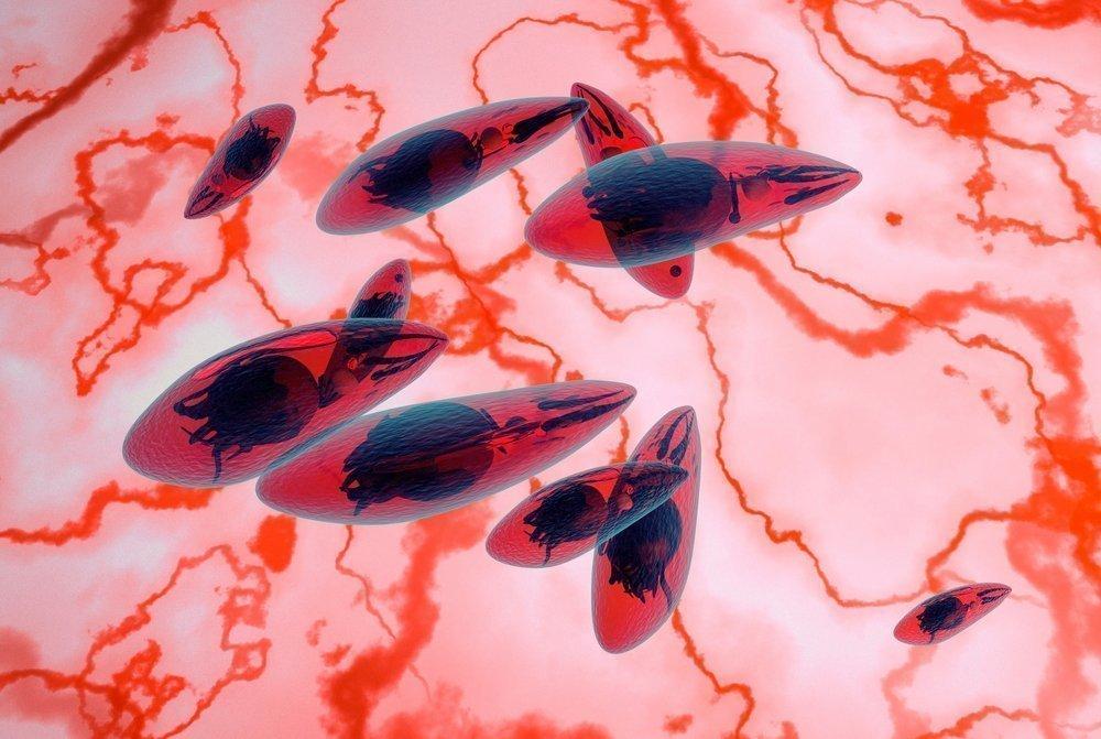 Что такое токсоплазмоз и почему он возникает?