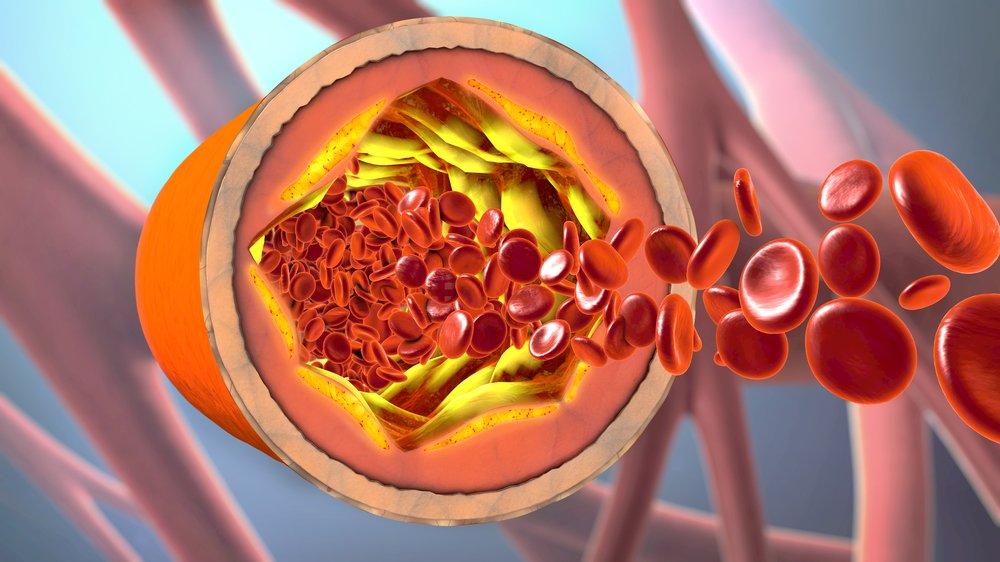 Симптомы, характерные для атеросклероза сосудов головного мозга
