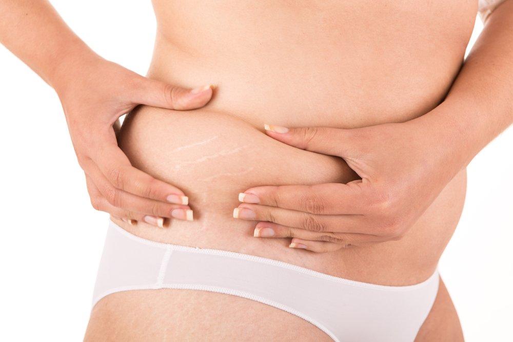 Растяжки на коже: симптомы и причины