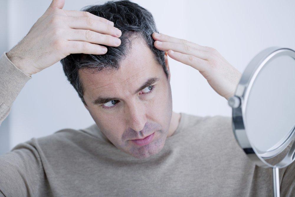 Выпадение волос, основные признаки