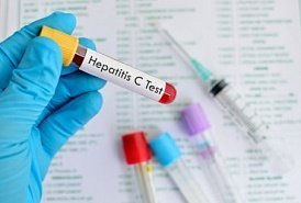 Истории болезни вирусный гепатит а у детей