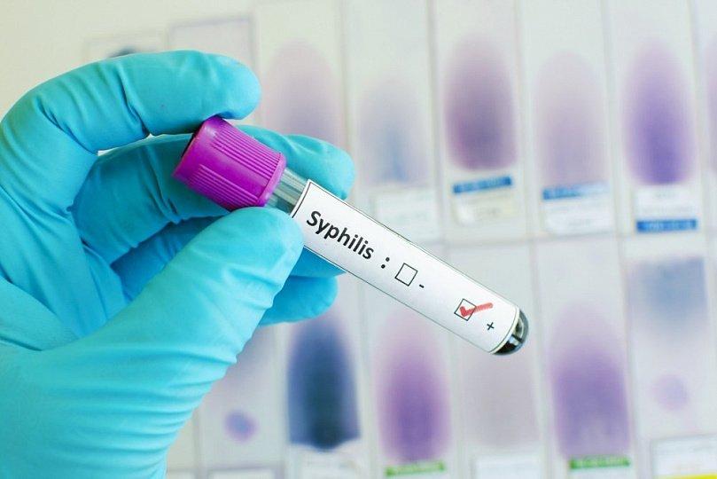 анализ на сифилис для госпитального комплекса