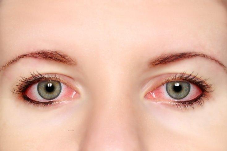 Аллергический конъюнктивит: симптомы